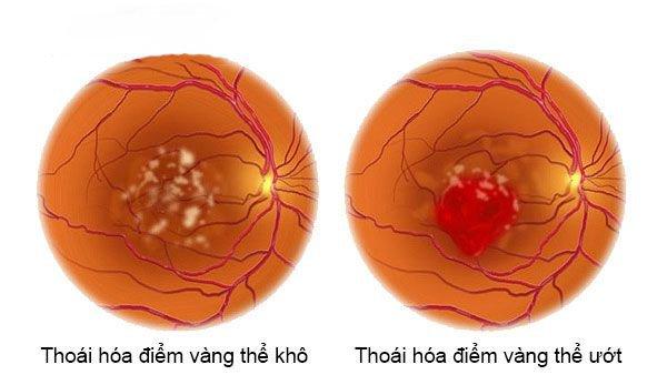 Thoái hóa điểm vàng là bệnh lý hàng đầu gây suy giảm thị lực ở người lớn tuổi.